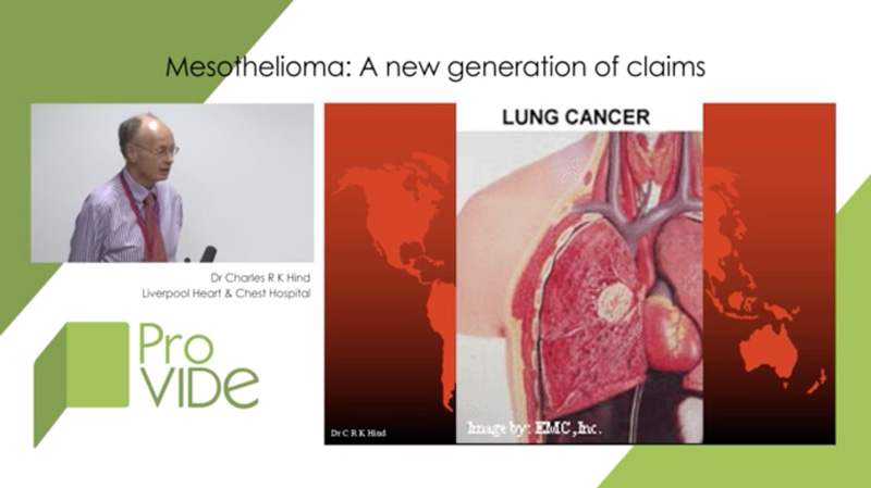 Mesothelioma: a new generation of claims